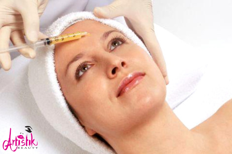 Microneedling with PRP