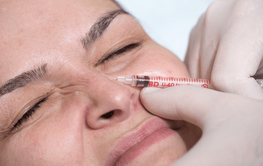 Top 12 areas Botox is used
